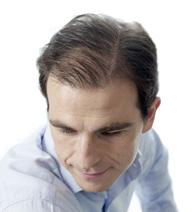 alopecia avanzada en hombres