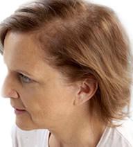 alopecia avanzada en mujeres