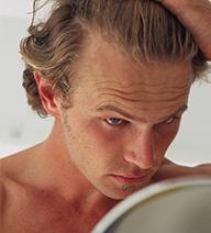 problemas puntuales caida cabello en hombres
