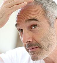 sintomas visibles de caida de cabello en hombres