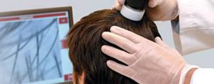 Hombre durante un diagnostico capilar llevado a cabo por un especialista en salud capilar