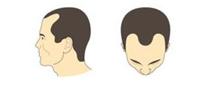 Escalas de alopecia