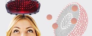 laser nanosomas mujer