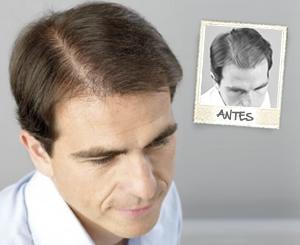 Imágenes de un hombre antes y después de realizar un sistema capilar