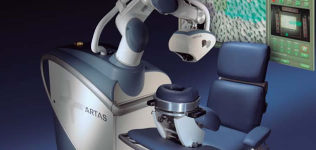 microinjerto-robot-artas
