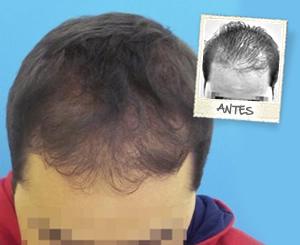 Dos imágenes de un hombre dónde aparece su pelo antes y después de recibir un tratamiento capilar