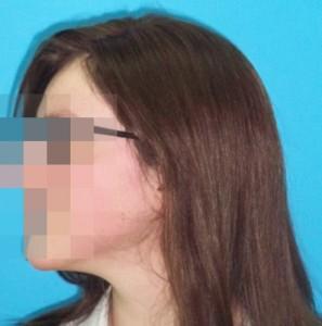 Mujer después de recibir tratamiento capilar lado izquierdo