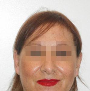Mujer antes de recibir sistemas de integración capilar