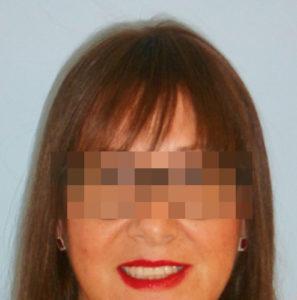Mujer después de recibir tratamiento de alopecia avanzada