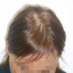 Mujer antes de recibir sistemas Hair & Hair