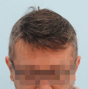 Hombre después de recibir tratamiento capilar parte frontal