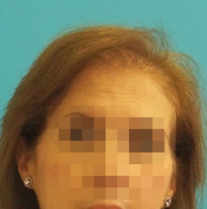 Mujer antes de recibir sistemas Hair & Hair imagen frontal