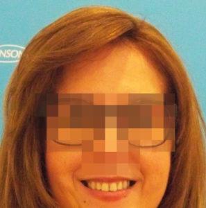 Mujer después de recibir sistemas Hair & Hair imagen frontal