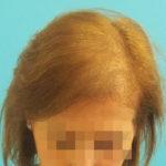 Mujer antes de recibir sistemas de cabello natural Hair & Hair imagen frontal