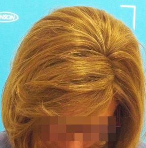 Mujer después de recibir sistemas Hair & Hair imagen frontal grande