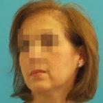 Mujer antes de recibir sistemas de cabello Hair & Hair imagen frontal