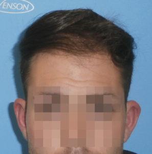 Hombre antes de recibir microinjerto capilar