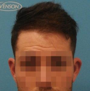 Hombre después de recibir microinjerto capilar imagen frontal