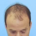 Hombre con primeros síntomas de pérdida de cabello antes de realizar un microinjerto capilar imagen grande