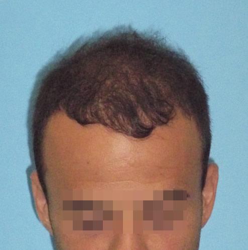 Hombre con primeros síntomas de pérdida de cabello después de realizar un microinjerto capilar
