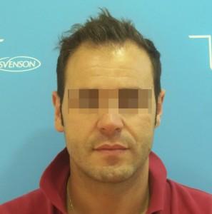 Hombre con primeros síntomas de alopecia avanzada antes de un microinjerto imagen grande