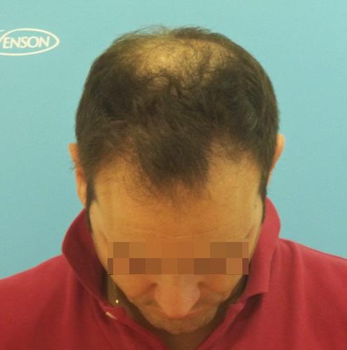 Imagen frontal grande de un hombre con primeros síntomas de alopecia avanzada antes de un microinjerto capilar