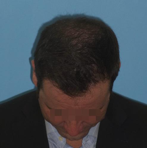 Imagen frontal de un hombre con primeros síntomas de alopecia avanzada después de un microinjerto capilar