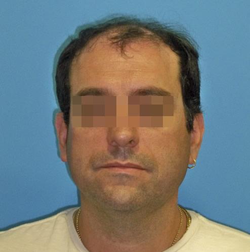 Hombre con alopecia avanzada previo a recibir un microinjerto imagen grande