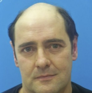 Hombre con alopecia avanzada previo a recibir sistemas Hair & Hair imagen