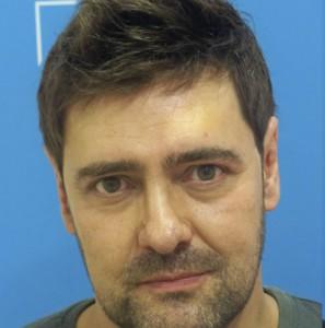 Hombre con alopecia avanzada después de recibir sistemas Hair & Hair