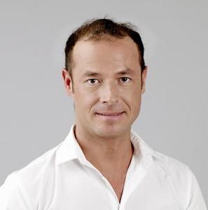 Hombre con alopecia avanzada antes de una integración capilar imagen