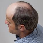 Hombre con alopecia avanzada antes de una integración capilar imagen lateral