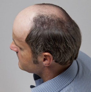 hombre con alopecia avanzada tras sistemas de integracion capilar en Svenson
