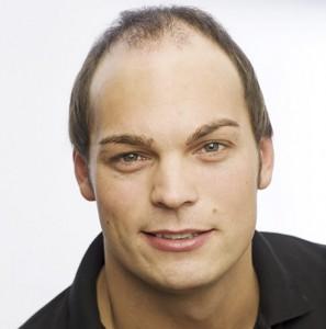 Imagen de un hombre con alopecia avanzada previo a recibir tratamiento de integración capilar