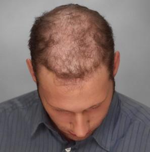 Hombre con alopecia avanzada antes de una integración capilar imagen frontal
