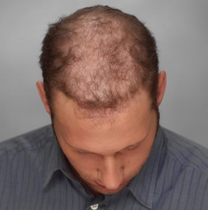 hombre con alopecia avanzada antes sistemas de integracion capilar en Svenson