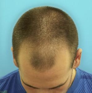 Hombre antes de un tratamiento médico-cosméticos