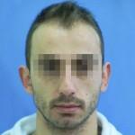 Hombre con primeros síntomas de caída capilar antes de tratamiento capilar