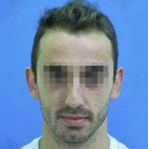 Hombre con primeros síntomas de caída capilar después de tratamiento capilar