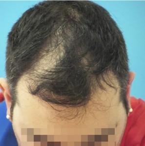 Hombre antes de empezar un tratamiento capilar médico