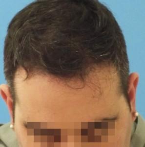 Hombre después de empezar un tratamiento capilar médico imagen grande