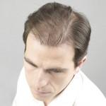 microinjerto capilar en hombres
