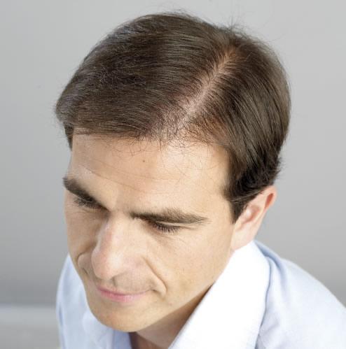 Hombre después de hacerse un microinjerto capilar