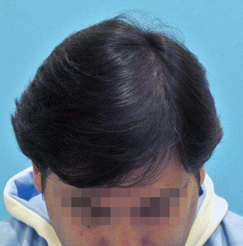 Hombre después de realizar un microinjerto capilar