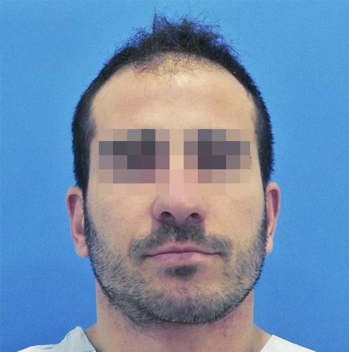 Hombre con problemas capilares antes de realizar un microinjerto imagen