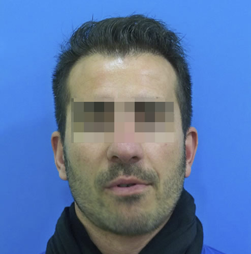 Hombre con problemas capilares después de realizar un microinjerto
