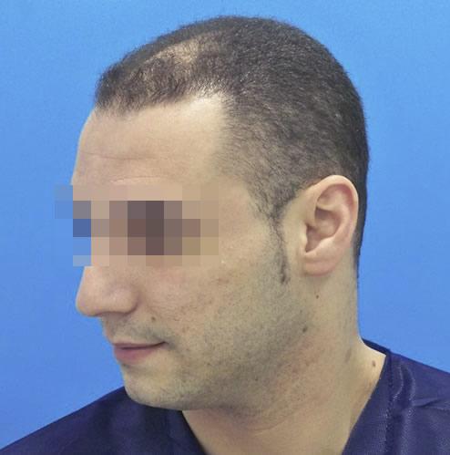 Hombre con caída del cuero cabelludo antes de recibir un microinjerto capilar imagen