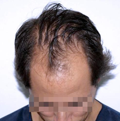 Hombre con caída capilar antes de recibir un microinjerto imagen frontal