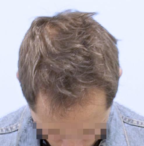 Hombre después de realizarse un microinjerto capilar