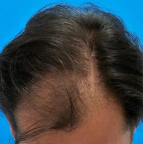 Imagen de un hombre previo a recibir un microinjerto capilar